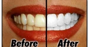 Како ги избелев забите во домашни услови? Девојка го откри својот рецепт