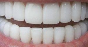 Користејќи го овој трик ќе добиете бели заби за само 180 секунди – сè е природно