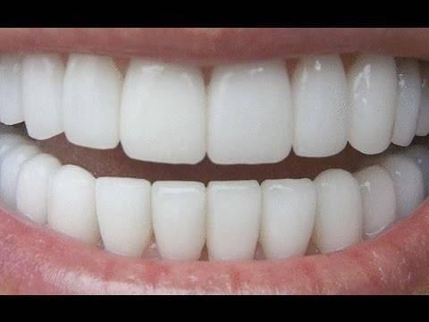 Koристејќи го овој трик ќе добиете бели заби за 180 секунди. Потполно природно
