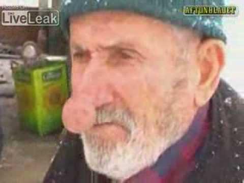 Откриен човекот со најголемиот нос!