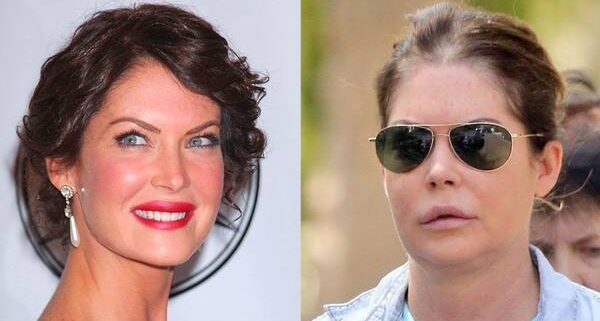 rs_1024x759-140804161701-1024.before-after-lara-flynn-boyle-080414